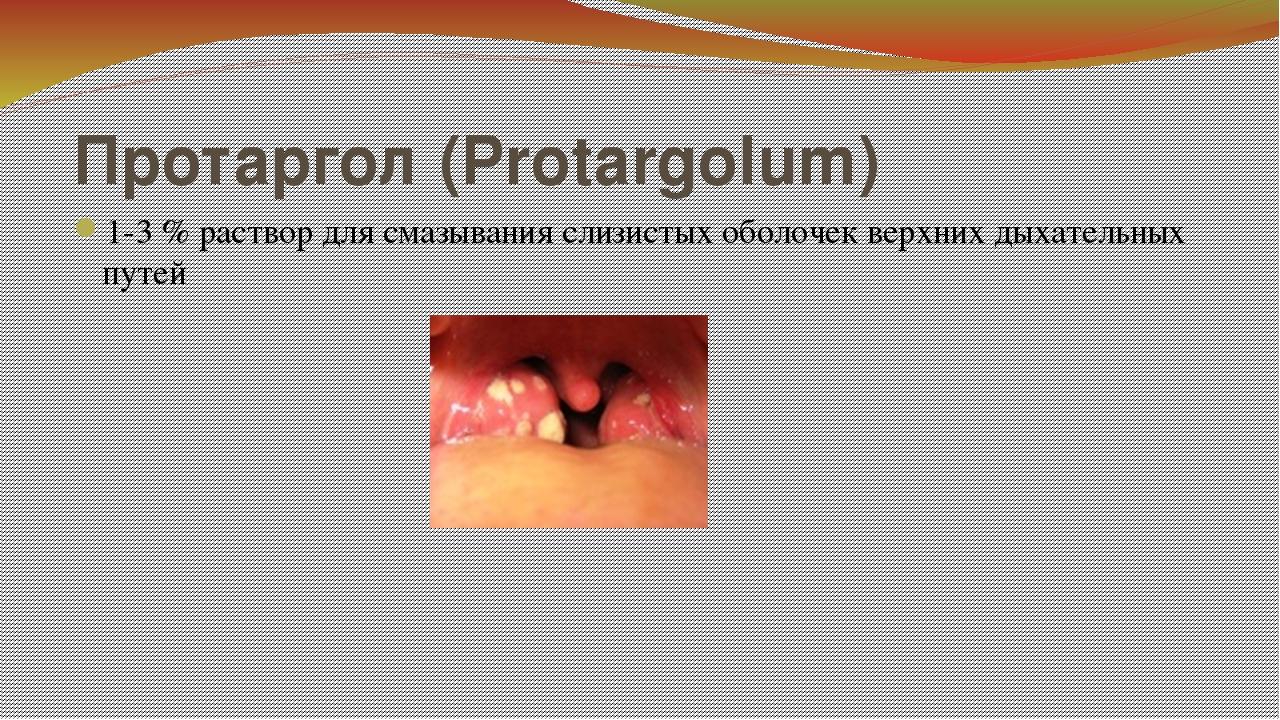 Протаргол (Protargolum) 1-3 % раствор для смазывания слизистых оболочек верхн...