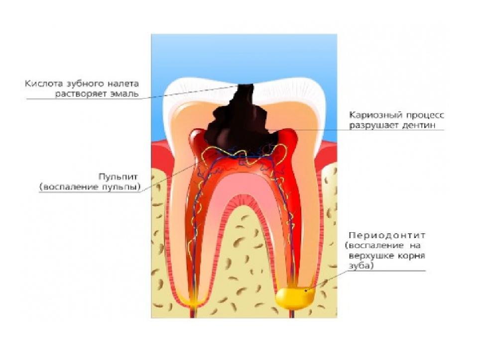 Частая причина боли — кариес, который сопровождается воспалением пульпы либо нерва.